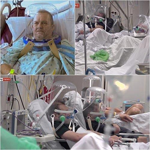 استفاده از کلاههای حبابی شکل در بیمارستانهای ایتالیا برای کاهش مرگ و میر کرونایی