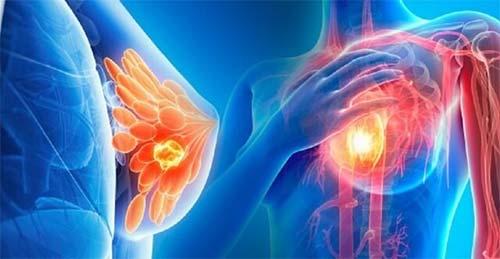 نقش بزرگ بودن سینه ها در تشخیص سرطان پستان