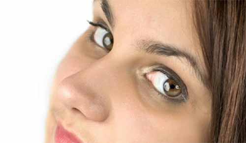 آیا خود ارضایی باعث کاهش دید یا سیاه شدن دور چشم ها می شود