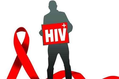 چطور بفهمیم ایدز داریم-نشانه هایی که می گوید ایدز دارید