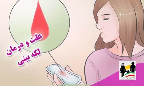 علت و درمان لکه بینی