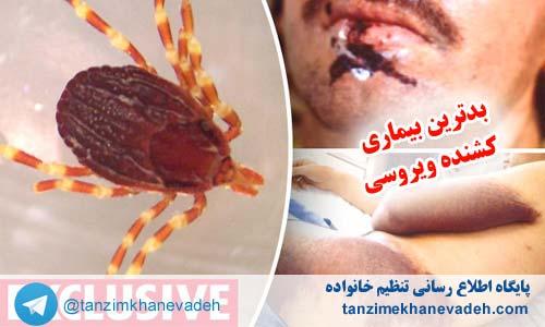 بدترین بیماری کشنده ویروسی