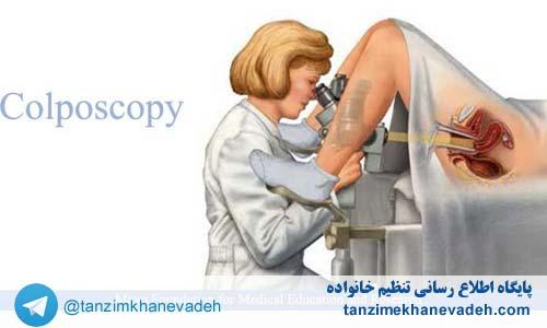 کولپوسکوپی چیست و چگونه انجام میشود