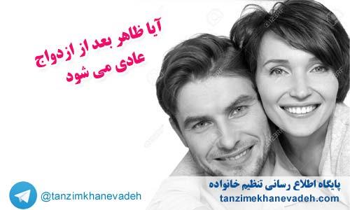 آیا ظاهر( چهره) بعد از ازدواج عادی می شود