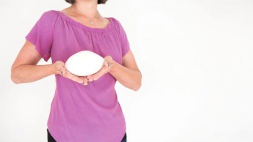 تاثیر پروتز سینه بر شیردهی